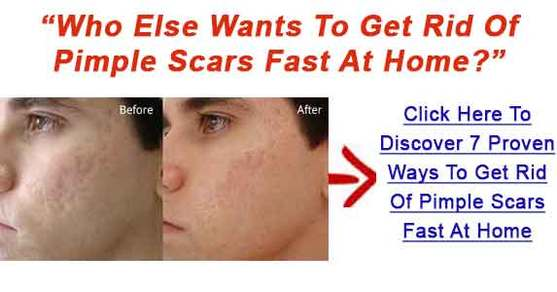 Swelling around facial pimple
